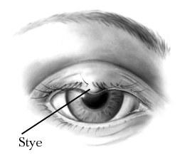 stye removal
