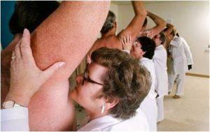 armpit sweat removal