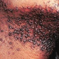 razor bumps removal