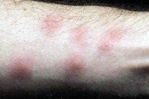mosquito bite removal